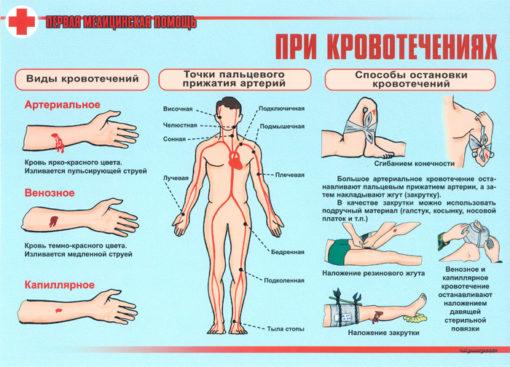 Комплект плакатов Первая медицинская помощь